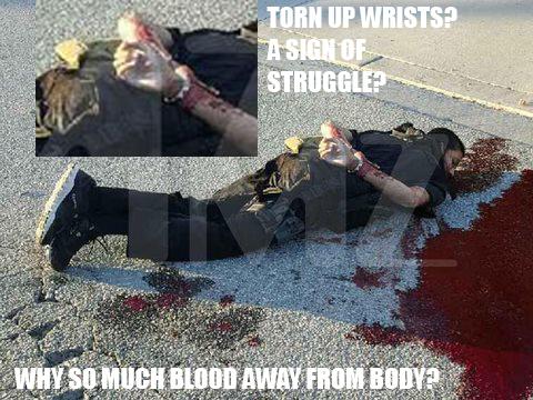 torn_up_wrists